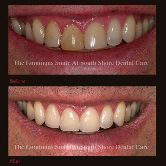 Inflamed gums and recontouring