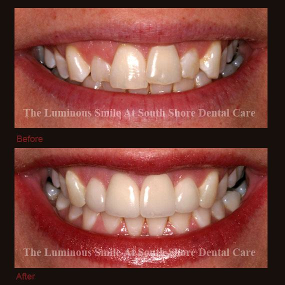 Large gums and recontouring