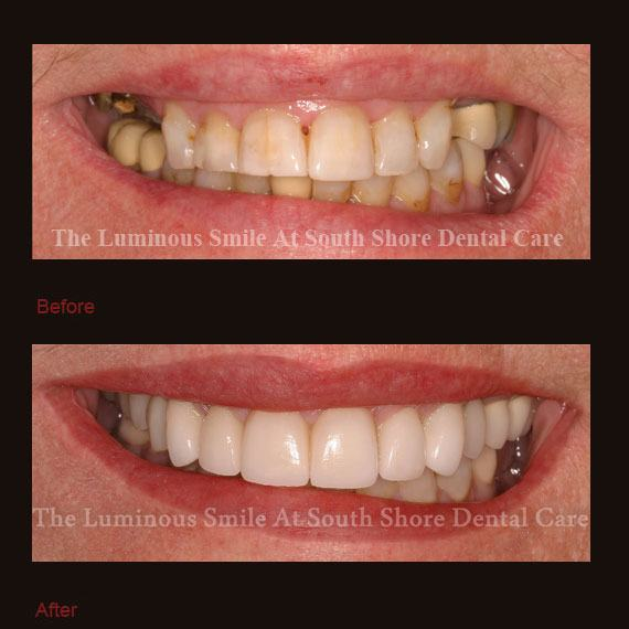 Severe tooth discoloration and damaged treated with crowns