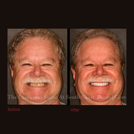 Short and discolored front teeth repaired with crowns