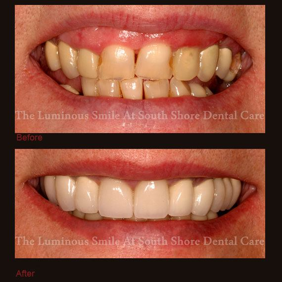 Damaged front teeth repaired with crowns
