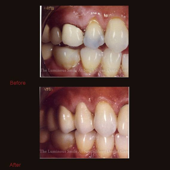 Dark colored tooth repaired with crown