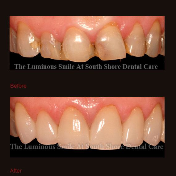 Decayed front teeth and dental crowns repair