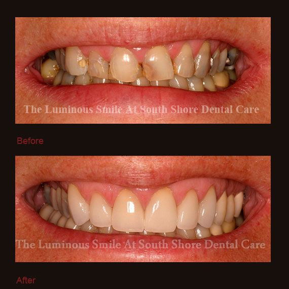 Severely decayed smile repaired with crowns