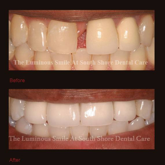 Gap between front teeth repaired with crowns