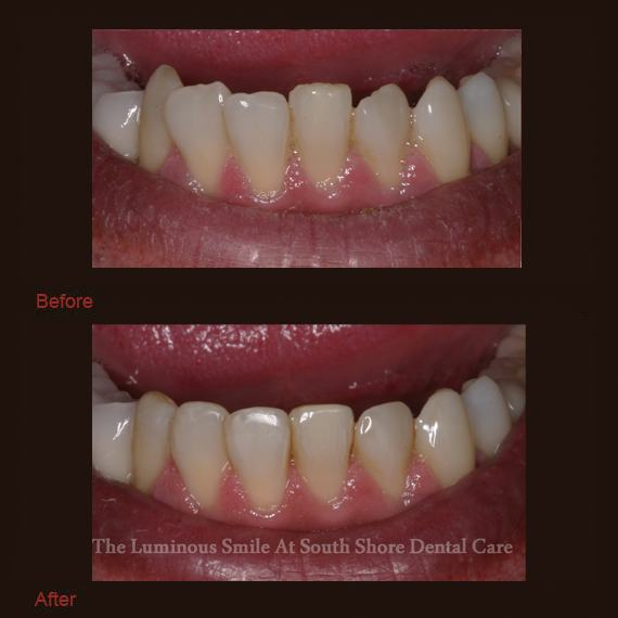 Chipped bottom teeth and enamel shaping