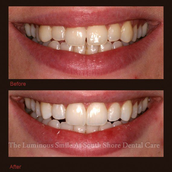 Uneven top tooth line and enamel shaping