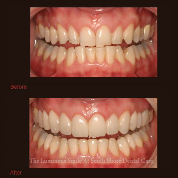 Chipped cracked teeth and enamel shaping