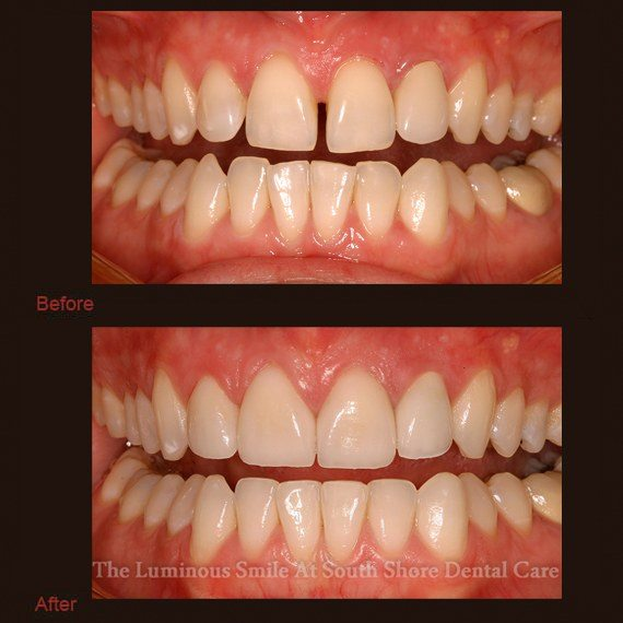 Gapped and misshapen teeth repaired with enamel shaping