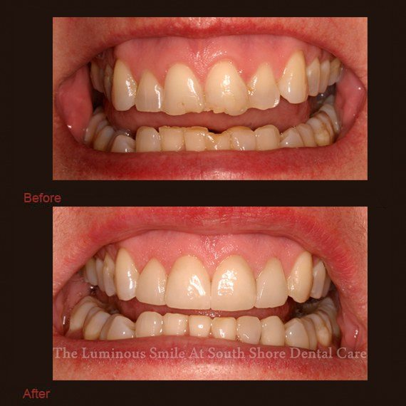 Severely chipped broken teeth repaired with enamel shaping
