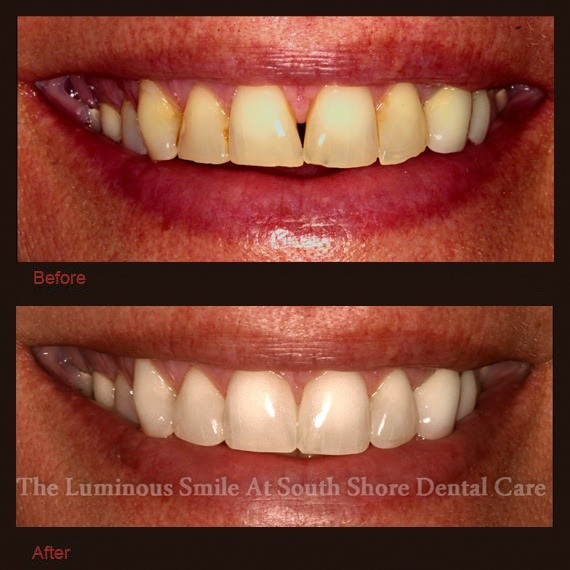 Broken damaged teeth repaired with enamel shaping