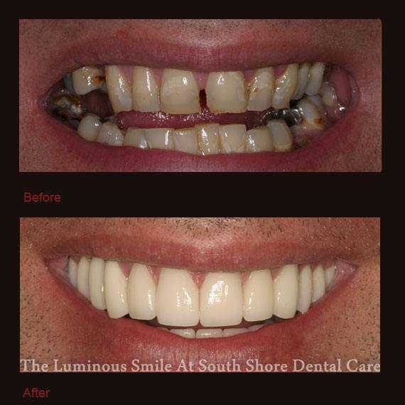 Unevenly spaced and damaged teeth and porcelain veneers