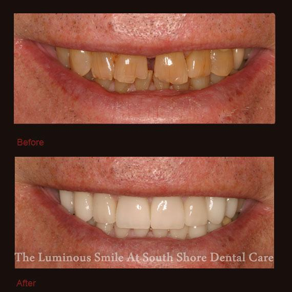 Gapped and damaged front teeth and porcelain veneers