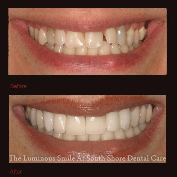 Gap between front tooth and side tooth and porcelain veneers