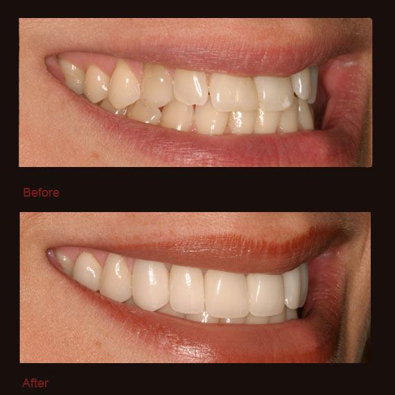 Overlapping front teeth and porcelain veneers