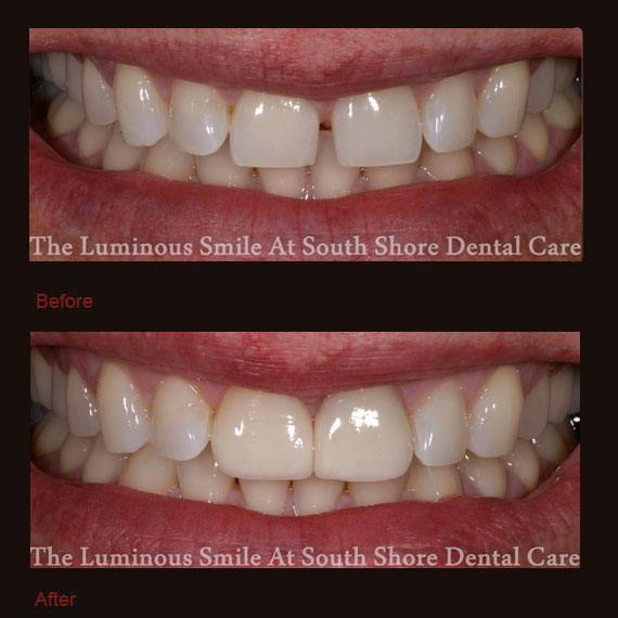 Gapped front teeth flared outward and porcelain veneers