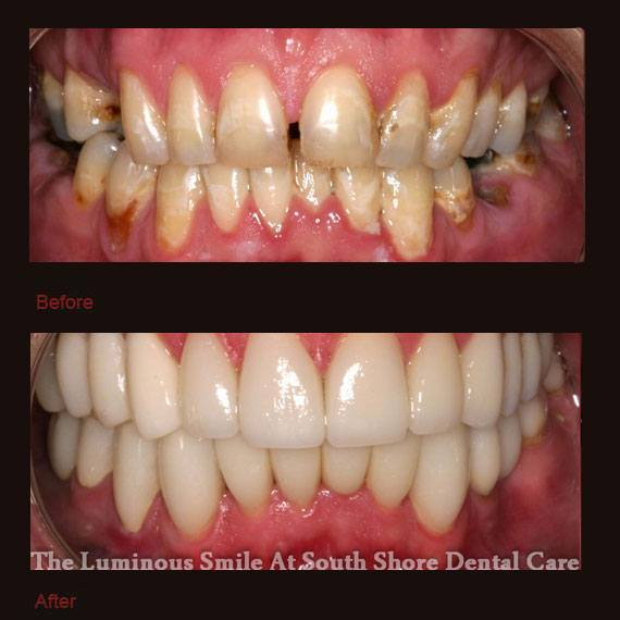 Numerous dental gaps and flaws and porcelain veneers