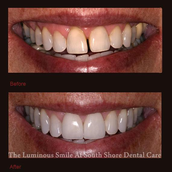 Yellow and gapped front teeth and porcelain veneers