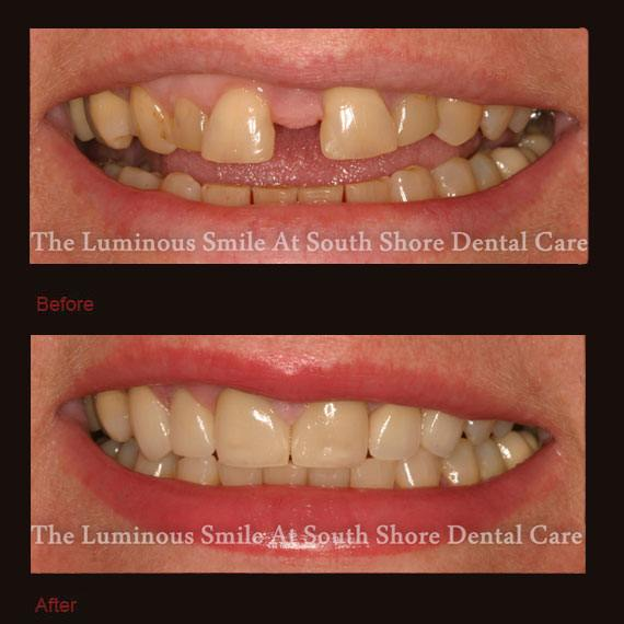 Extreme front tooth gap and porcelain veneers