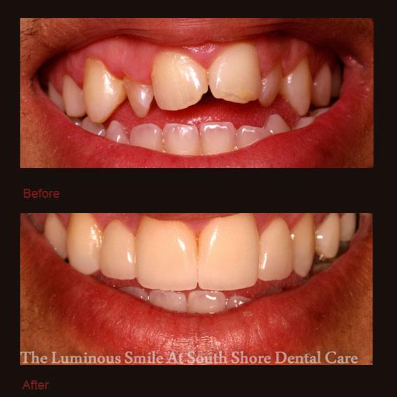 Crooked and damaged teeth and porcelain veneers repaired