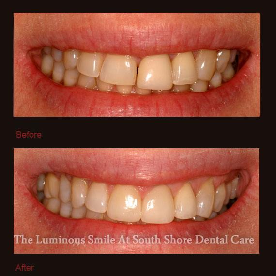 Gapped and damaged teeth and porcelain veneers repaired