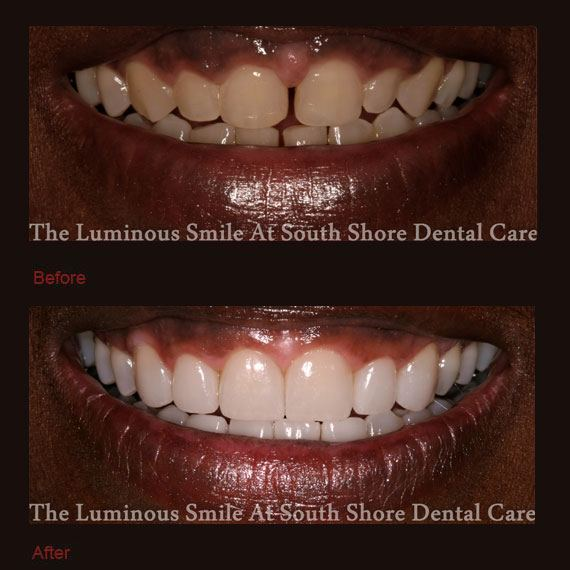 Top and bottom tooth gaps and porcelain veneers