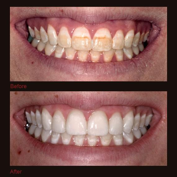 Before and after severe discoloration and full veneers