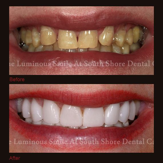 Before and after images severe damage and discoloration and full veneer