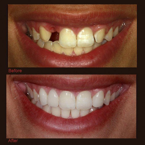 Before and after images missing tooth yellowed smile and full veneer