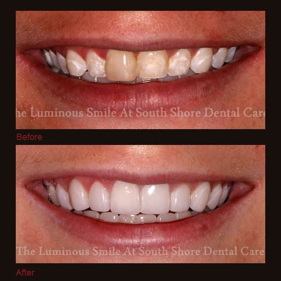 Before and after images yellowed teeth and full veneers