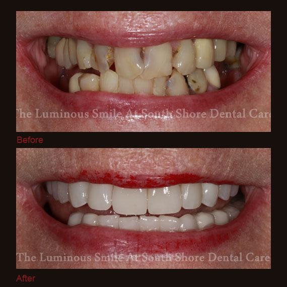 Before and after images severe decay and full veneers