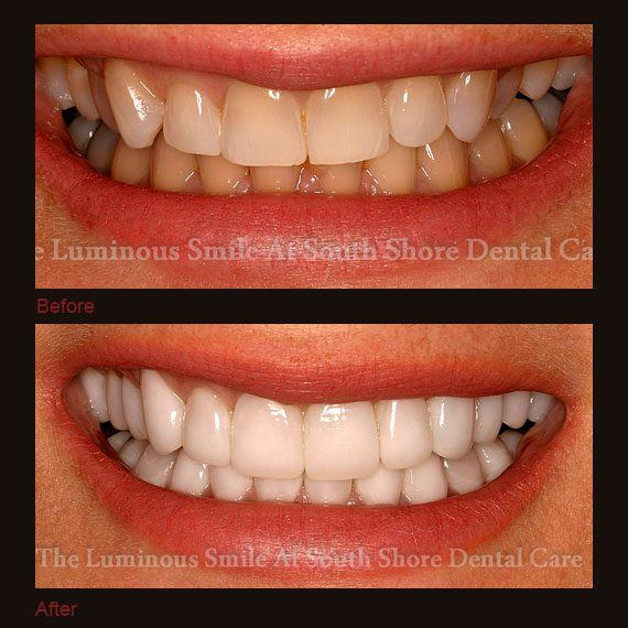Before and after images yellow teeth and full veneers
