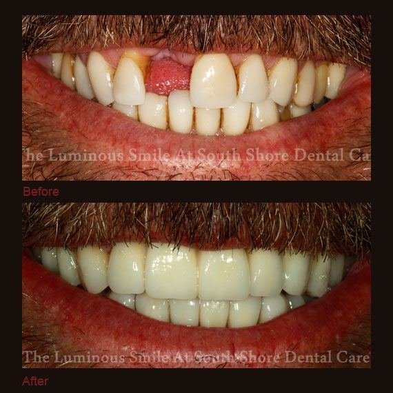 Before and after images missing damaged teeth and full veneers