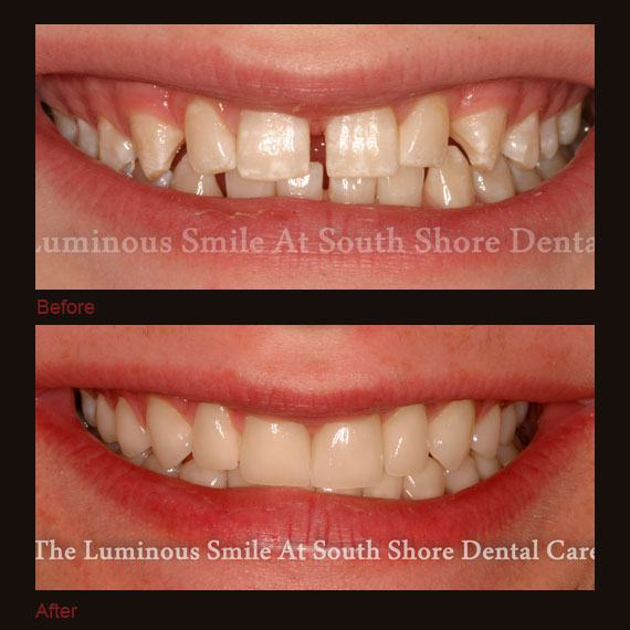Before and after images unevenly spaced teeth and full veneers