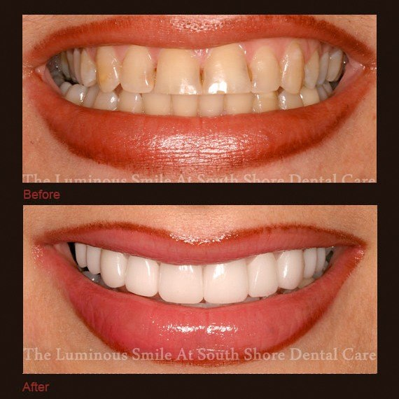 Before and after images yellow stubby teeth and full veneers
