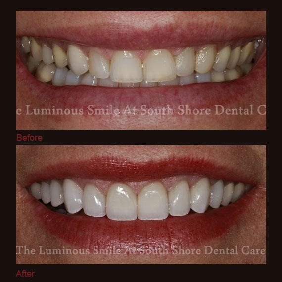 Before and after images yellowed teeth and flawless full veneer