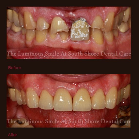 Severely damaged teeth and implant restorations