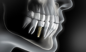 Diagram of dental implants in Massapequa Park