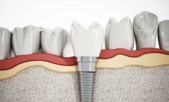 Diagram of how dental implants work in Massapequa Park