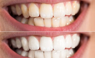 A before and after photo of teeth that have been whitened