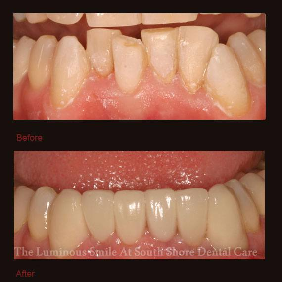 Decayed and discolored bottom teeth and veneers