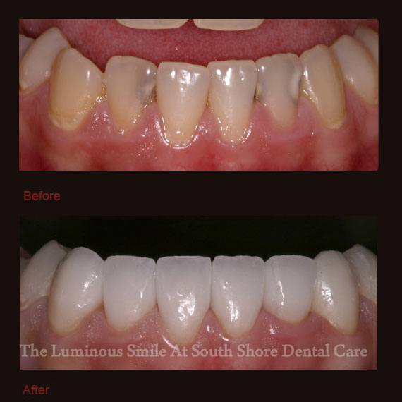 Cavities and discoloration on bottom teeth and veneers