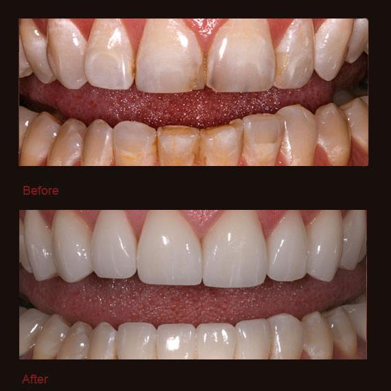 Decay and damage on bottom teeth and veneers