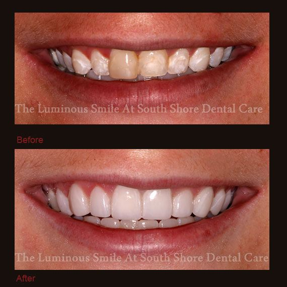 Before and after damaged teeth and flawless lumineers