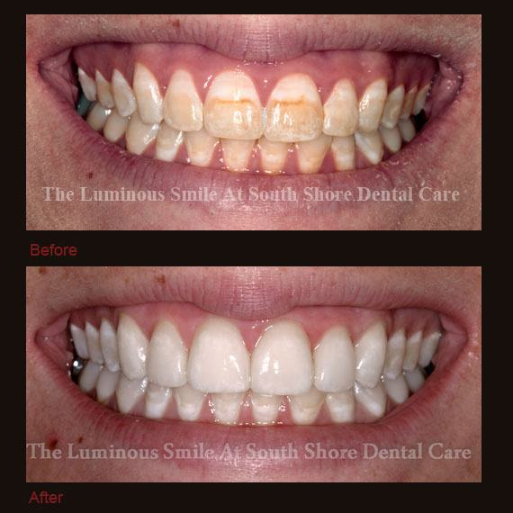 Before and after dark colored teeth and flawless lumineers