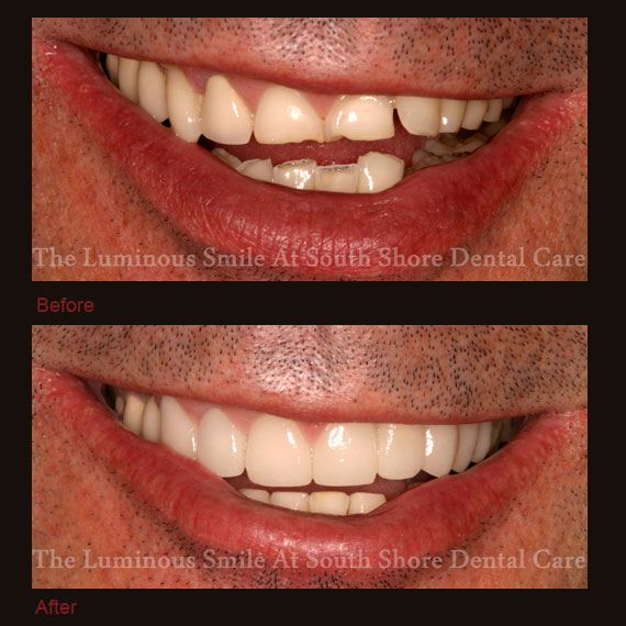 Before and after worn teeth and flawless lumineers