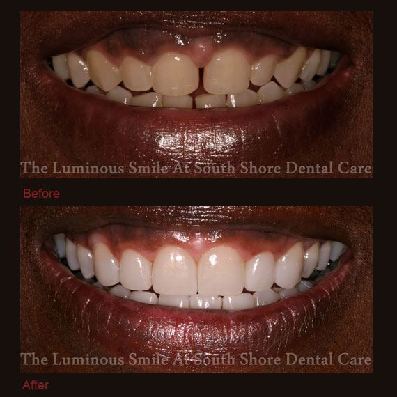 Before and after gap between teeth and flawless lumineers