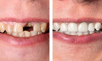 Before and after images of patient with missing tooth