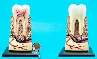 a model of a tooth's roots showing how root canal therapy in Massapequa Park works