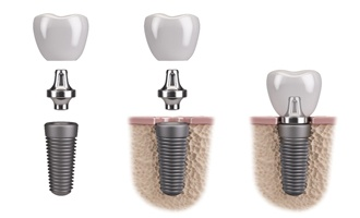 dental implant abutment and crown